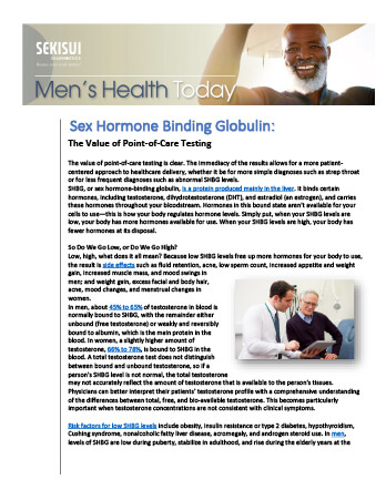 Sex Hormone Binding Globulin